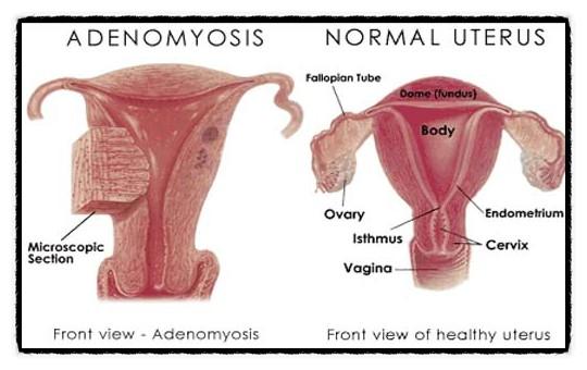 자궁_선근증
