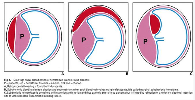 그림 A. 태반후 혈종은 태반이 자리잡는 자리에서 혈종에 따른 융모막 분리가 일어나는 상황으로, 태반의 박리를 일으킬 위험이 비교적 높습니다. 그림 B. 융모막하 출혈은 융모막이 비교적 느슨하게 붙어있는 태반 언저리의 탈락막과 융모막 사이에 흔히 발생합니다. 그림 C. 양막하혈종은 양막을 구성하는 층과 층 사이 혹은 양막과 태반의 융모판 사이에 발생하며 제대혈관의 가지를 내는 태아 혈관들이 파열되어 나타납니다. 분만에 임박한 시기에 나타나는 드문 질환입니다.