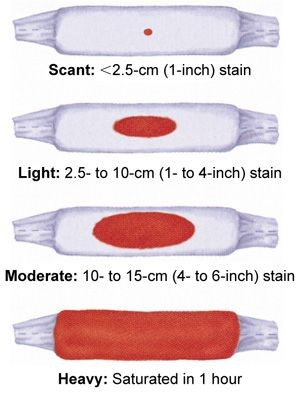 Blood clots after pregnancy size chart